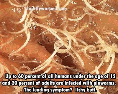 Pinworms In Humans Around Anus
